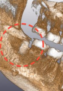 CT 埋伏歯 02