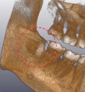 CT 埋伏歯 03